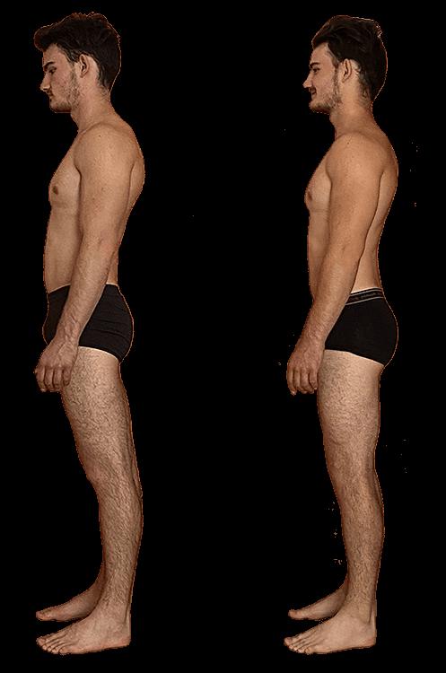 miglioramento posturale con integrazione strutturale